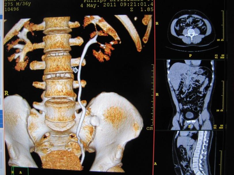 radiología ejem